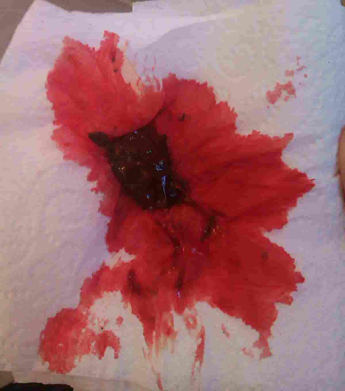 blood in cat stool