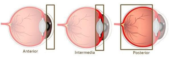 what is uveitis